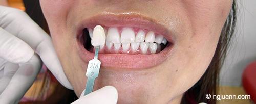 Bangkok Smiles Dental review