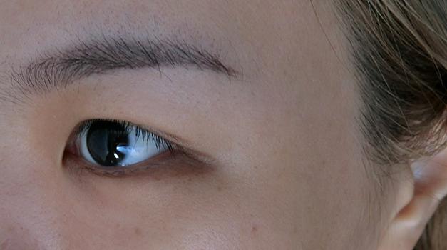 My Skin Flaws