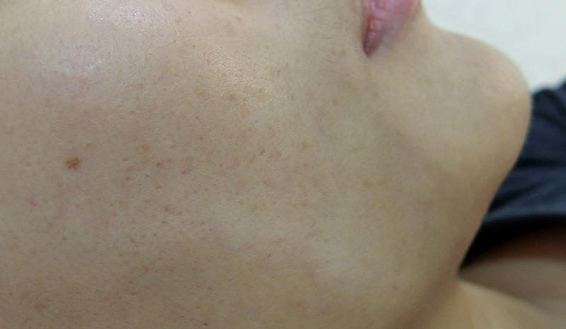 Drx Clinic Laser Review