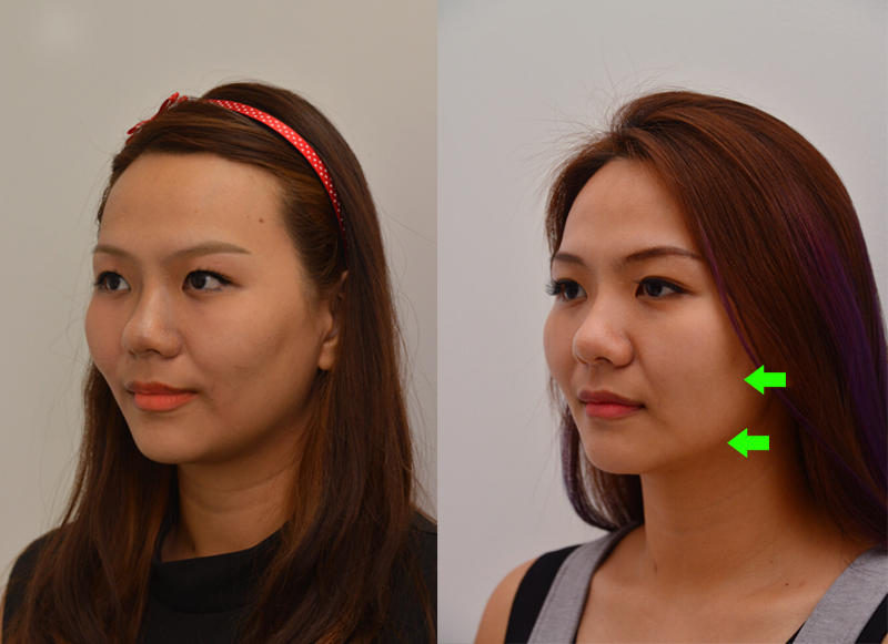 skin tightening ultherapy review